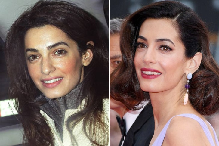 Amal Clooney – Doughty Street Chambers Barrister