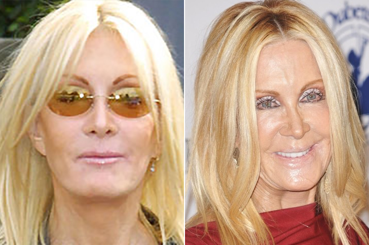Joan Van Ark – Knots Landing