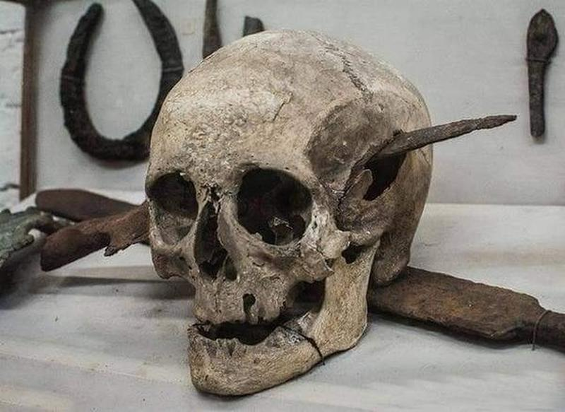 The Skull Of A Roman Legionnaire Who Died In The Gallic Wars