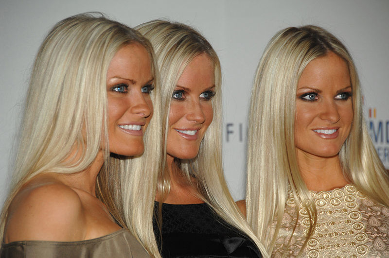 Identical Triplets, Identical DNA